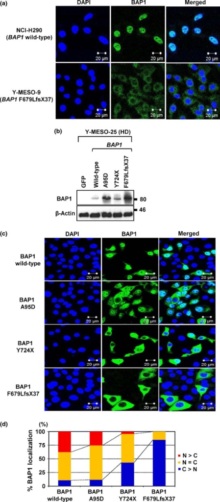 Effects of BRCA1-associated protein 1 (BAP1) mutation on its own nuclear localization. (a) Endogenous WT BAP1 in NCI-H290 showed nuclear localization, whereas mutant BAP1 (p.F679LfsX37) in Y-MESO-9 showed cytoplasmic translocation. (b) Protein expression of exogenously transduced WT or mutant BAP1 (A95D, Y724X, and F679LfsX37) vectors into the malignant mesothelioma cell line with BAP1 deletion (Y-MESO-25). (c) Immunofluorescence analysis of subcellular BAP1 localization with exogenously transduced BAP1 vectors into the Y-MESO-25 cells. (d) Percentages of subcellular localization (c) were calculated. Wild-type BAP1 was mainly localized in the nucleus (N), whereas BAP1 mutants showed translocation in the cytoplasm (C). HD, homozygous deletion.