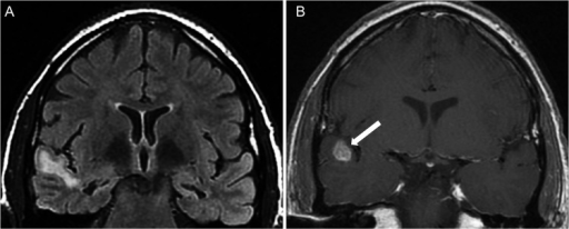 "Bilateral hippocampal sclerosis and ""dual pathology"" in a 34-year-old woman. A) Coronal FLAIR image showing bilateral hippocampal atrophy and hyperintensity as well as a hyperintense lesion in the right superior temporal gyrus. B) Coronal T1-weighted image after a contrast administration revealed a nodular mass enhancement situated at the gray-matter-white-matter junction (white arrows); this mass might correspond to a developmental neoplasm. This lesion appeared stable on consecutive MRI scans."
