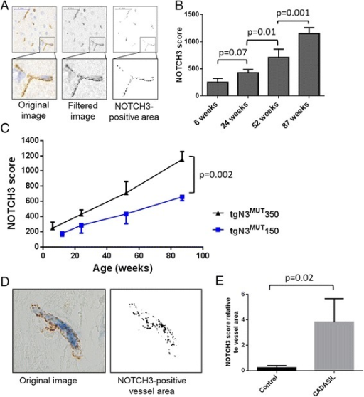 Quantitative analysis of vascular NOTCH3 protein accumulation in transgenic human NOTCH3 p.Arg182Cys mice and in brain tissue of CADASIL patients. a ImageJ processing of NOTCH3-immunostained brain sections of tgN3MUT350 mice. The images were filtered to reduce background signal and a standardised threshold was applied to determine the NOTCH3- positive area composed of individual granular NOTCH3 deposits, resulting in the NOTCH3 score. b Quantitative analysis of NOTCH3 accumulation in tgN3MUT350 mice. The NOTCH3 score shows an age-dependent increase and allows for a sensitive discrimination between age groups (One-Way ANOVA, Fishers least significant difference). c Validation of the NOTCH3 score in tgN3MUT150 mice, also showing an age-dependent increase. At each time point, the score is lower in tgN3MUT150 than in tgN3MUT350 mice (unpaired t-test), reflecting the correlation between NOTCH3 RNA expression and NOTCH3 protein accumulation. Data represent the average +/− SD of the three mice analysed per time point. d ImageJ analysis of human brain sections double stained with NOTCH3 and CD31. The vessel area was selected based on the staining with the endothelial cell marker CD31, and within this area, the NOTCH3 score was determined. e CADASIL patients show a significantly higher NOTCH3 score than age-matched controls. (unpaired t-test) Data represent the average +/− SD of three CADASIL patients and three control individuals