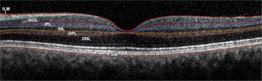 Multilayer retinal segmentation. The RNFL is defined between the borders of the inner limiting membrane (ILM) and GCL; GCL between the RNFL and IPL; IPL between the GCL and INL; INL between the IPL and OPL; and OPL between the INL and ONL. BM, Bruch's membrane.