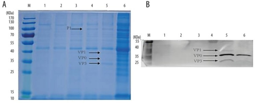 Expression of VLPs in the SMD1168 yeast strain. The supernatant of recombinant SMD1168 yeast was harvested after 96 h of culture and detected by SDS-PAGE (A) and Western blot (B). The PAGE gel was stained by Coomassie blue R-250. The primary antibody used in the Western blot was rabbit anti-CA16 antiserum diluted at 1: 1500. Lane M: 10–170 KD protein marker; Lane 1: SMD1168 culture supernatant; Lane 2: pGAPZαA/SMD1168 culture supernatant; Lane 3: pGAPZαA-3CD/SMD1168 culture supernatant; Lane 4: pGAPZαA-P1/SMD1168 culture supernatant; Lane 5: pGAPZαA-VLPs/SMD1168 culture supernatant; Lane 6: pGAPZαA-VLPs/SMD1168 concentrated supernatant.