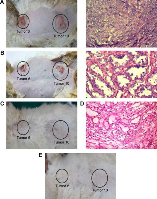 Photographs for Case 7 (feline) with two tumors (Tumor 6: anterior thoracic opened tumor; and Tumor 10: caudoinguinal tumors) and histopathology images (Tumor 6) showing the tumor regression before and/or after each treatment.Notes: (A) Before first treatment, (B) before second treatment, (C) after third treatment, (D) before third treatment, and (E) 1 year after third treatment, no relapse is observed. After 1 year, the tumors completely disappeared, thus we were unable to take histopathology data for the animals. Magnification of histopathology images stained with H&E: (A) and (D) ×100; (B) ×200.Abbreviation: H&E, hematoxylin and eosin.