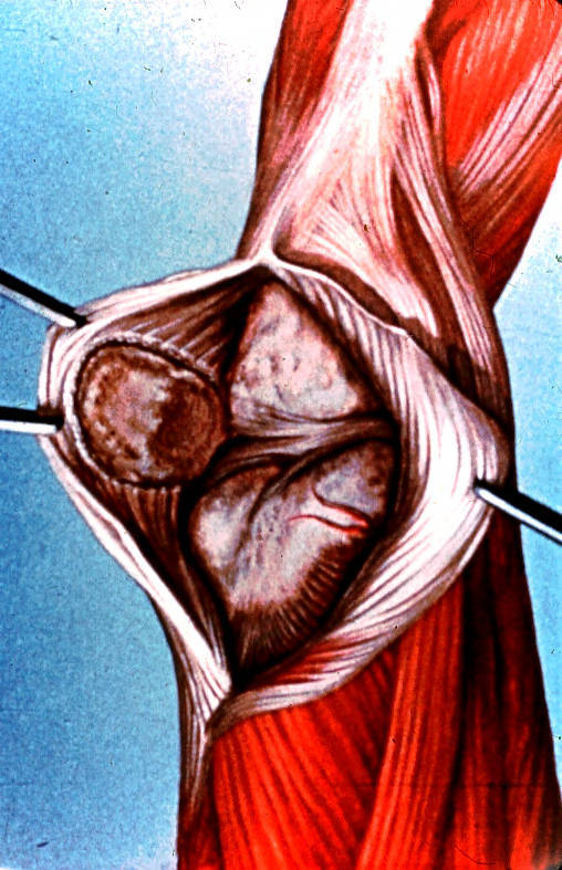 knee; subpatellar region