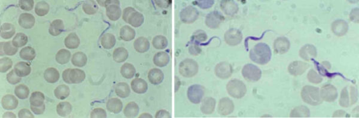 Trypanosoma lewisi (left) and Trypanosoma vivax (right) adult blood forms. Left: Trypanosoma lewisi has a long thin posterior end, with a sub terminal ovale kinetoplast, the nucleus is in the anterior part of the body, part of the flagellum is free; Right: Trypanosoma vivax has a round posterior end, with a terminal round kinetoplast, the nucleus is in the medium part of the body (dividing form on the right of the picture); part of the flagellum is free.