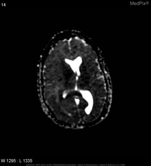 Image shows 2 foci of reduced diffusion adjacent to the right lateral ventricle.  Again involvement of the splenium of the corpus callosum is noted.
