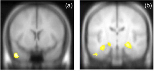 Correlations with symptom scores in hypothesised regions. (a) significant positive correlation between severity of hallucinations and activation in left middle temporal gyrus for sentence completion task, (b) significant negative correlation between severity of suspiciousness/persecution score and activation in bilateral MTL for the retrieval task. Maps thresholded at p = 0.005, KE = 300 voxels. Left hemisphere shown on left of image