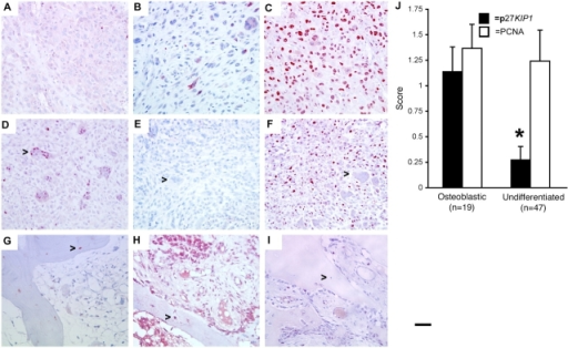 Expression of p27KIP1, osteocalcin, and proliferating cell nuclear antigen (PCNA) in human osteosarcoma samples. (A–I) High-power photomicrographs of parallel sections from two high-grade (A–C and G–I) and one low-grade (G–I) human osteosarcomas were stained for p27KIP1 (A, D, and G), osteocalcin (B, E, and H), and PCNA (C, F, and I). Arrows in D–F indicate multinucleated osteoclast; arrows in G–I indicate osteocytes. Bar, 50 μm. (J) Blinded quantitation of staining for p27KIP1 and PCNA in tumors with evidence of osteoblast differentiation (osteoid production) compared with dedifferentiated tumors. Error bars represent SEM. *, P < 0.05.