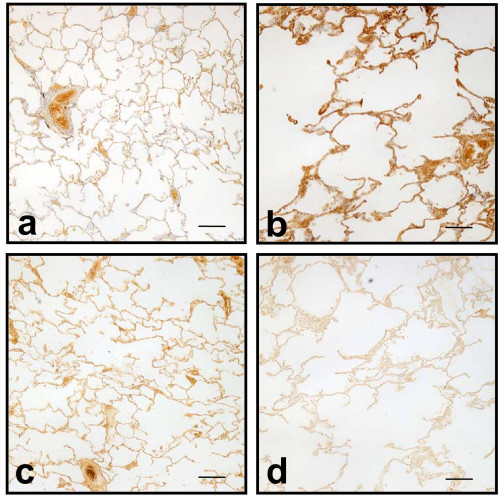 Reciprocal relationship between versican and elastin binding protein. Low power images of lung sections from a control patient (a,c) and a COPD patient (b,d) immunostained (using DAB chromogen) for versican and EBP. For each patient the images were taken from the same regions. Staining patterns show the reciprocal relationship between versican and EBP and the COPD lung shows the typical emphysematous structure. Scale bars = 400 μm