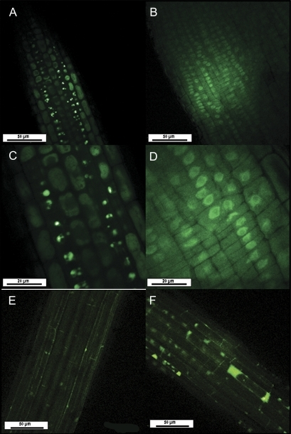 In situ location of glutathione in control (A, C, and D) and salt-treated roots (80 mM NaCl, E and F)) of Brassica oleracea during 24 h. Root sections were treated with dye solution (monochlorobimane) and images were taken by confocal laser scanning microscopy after an incubation period of 1 h. The fluorescent GSB conjugate was visualized in a single optical section of root. Zone I (A and B; C and D are magnifications of the same image in C and D) and zone II (E and F).