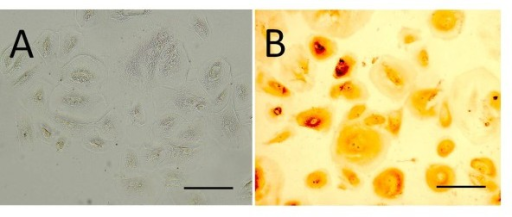 Bladder superficial urothelial cells isolated from bladder washings. Phase contrast microscopy demonstrated large spreading cells (A) which were positive for the umbrella cell marker CK20 (B). (Bar = 50 μm)