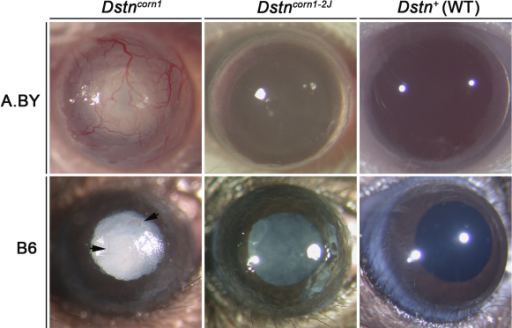 Gross anatomic imaging of eyes of A.BY Dstncorn1, B6.Cg-Dstncorn1 , A.BY.Cg-Dstncorn1–2J, B6 Dstncorn1–2J, A.BY WT, and B6 WT mice. Corneal neovascularization occurs only in lines with the Dstncorn1mutation (arrowheads in B6.Cg-Dstncorn1). While all Dstn mutants display a roughened corneal surface, this phenotype is more severe in Dstncorn1. Cataract formation occurs in all four mutants, but is delayed in Dstncorn1–2J when compared to Dstncorn1.