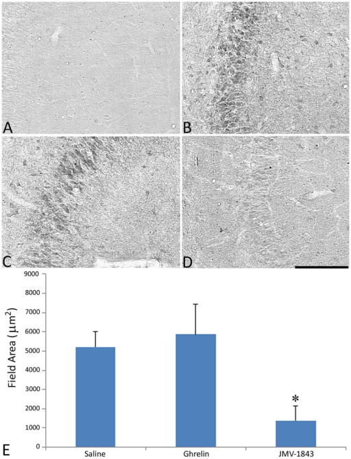 Changes in endothelin-1 (ET-1) immunoreactivity in the CA3 region of pilocarpine-treated rats after status epilepticus (SE).ET-1 is barely detectable in control non-epileptic rats (A). Immunoreactivity for ET-1 was strongly induced by the pilocarpine injection (B, illustrating a saline-treated rat), and ghrelin did not affect the remarkable induction of ET-1 (C). On the contrary, JMV-1843 counteracted the induction of ET-1 in the CA3 pyramidal cell layer (D, E). * = P<0.05 vs both saline and ghrelin groups, Fisher's LSD test. Scale bar, 150 µm.