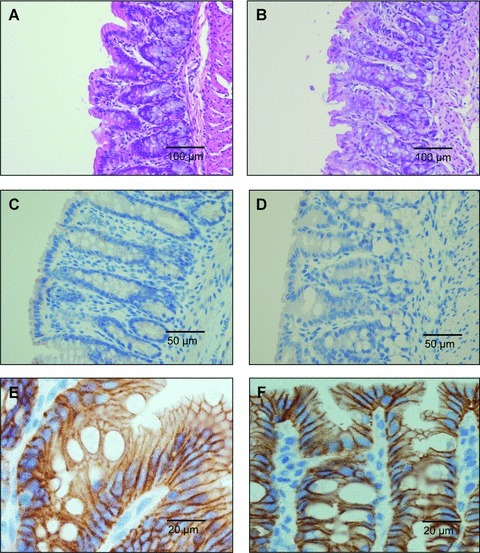 Histopathological examination of the haematoxylin- and eosin-stained colon specimens from methyl donor deficient rats (B) compared with controls (A). Immunohistochemistry of myeloperoxidase in colonic mucosa specimens from control (C) and methyl donor deficient rats (D). Immunohistochemistry of E-Cadherin in colonic mucosa of control (E) and methyl donor deficient rats (F). Data shown are representative of triplicate experiments and magnifications are indicated by bars.