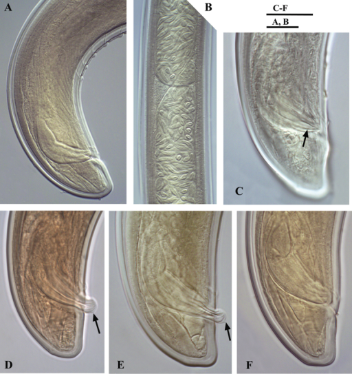 Calcaridorylaimus castaneae sp. n. Male: A Posterior end B Sperm cells in testis C–F Spicular region C Lateral piece of spicules D, E Extruded spicules, arrows pointing the spur F Spicules in the body. Scale bars: A, B – 20 μm; C–F – 18 μm.