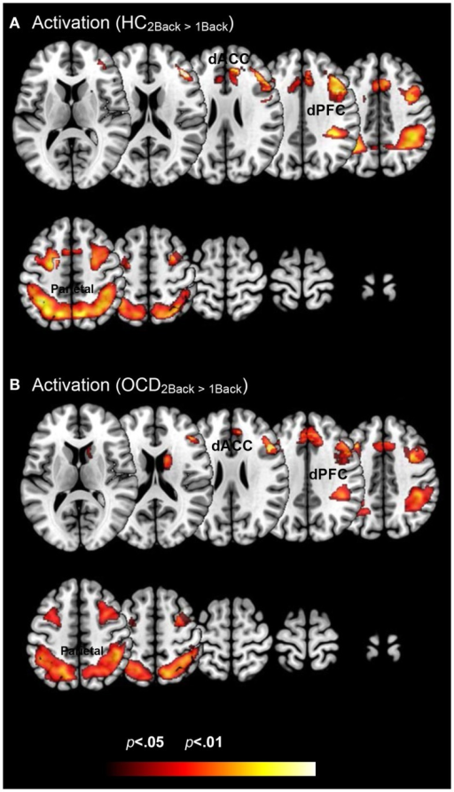 Within group changes in activation profiles as a function of load are depicted on identical ascending mosaics of axial views. The significant clusters (p < 0.05, cluster level) show significant increases in activation with increases in working memory related load. As seen, these increases are evident within both (A) healthy control and (B) OCD groups. These activation profiles establish within group effects of memory load across previously implicated load sensitive working memory related regions. These include dorsolateral prefrontal cortex (dPFC), the dorsal anterior cingulate (dACC), and the parietal cortex.