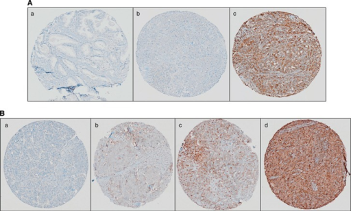 Immunohistochemical analysis of STAT1 in HGSC. (A) The STAT1 antibody (Abcam no. ab2415, polyclonal rabbit anti-human STAT1) optimisation by IHC was performed in (a) normal adjacent to prostate tumour tissue (showing negative staining), (b) HGS ovarian tissue (showing negative staining) and (c) HGS ovarian tissue (showing positive staining). (B) Independent validation of STAT1 expression was performed on an HGSC tissue microarray. Representative IHC images of overall STAT1 expression in HGSC. (a) Tissue punch scored as 0 negative/absent, (b) tissue punch scored as 1 with weak expression, (c) tissue punch scored as 2 for moderate expression and (d) tissue punch scored as 3 for strong expression.
