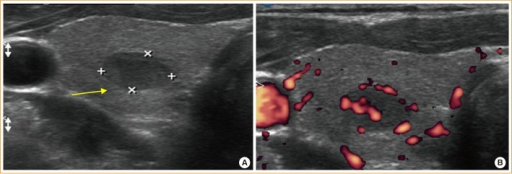 Thyroid ultrasound sonography showing an approximately 0.88×0.57×0.88 cm-sized hypoechoic nodule (A, yellow arrow) with increased vascularity (B) of the right lobe.