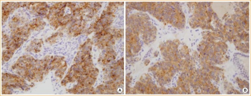 Immunohistochemistry findings showing strong positive chromogranin A (A, ×100) and synaptophysin (B, ×100) staining of the tumor cells.
