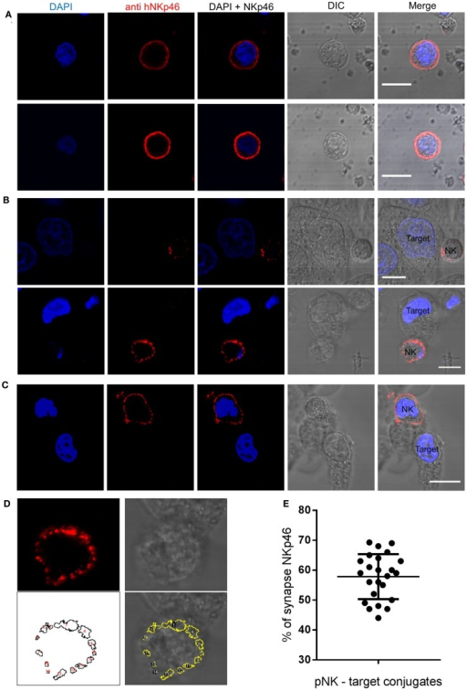 NKp46 spatial distribution at the immune synapse. Representative images of fixed human primary NK cells stained with DAPI for nuclear labeling (blue), anti-NKp46-biotin followed by streptavidin Alexa Fluor 647 (red), and DIC images. (A) Non-interacting primary NK cells. (B,C) NK cells co-cultured with target HeLa cells; with (B) or without (C) accumulation at the immune synapse. (D) NKp46 distribution analysis using automated particles detection. Upper panels show the enhanced magnified image from (B) of NKp46 staining (left) and DIC (right). The lower left panel shows detected objects in a masked image. Overlay is shown in lower right panel. Object 1 is the synapse area. (E) Summary of relative accumulation of NKp46 at the immune synapse from 24 NK-target interactions. Scale bars = 10 μm.