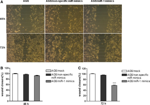 Ectopic expression of miR-1 reduces cell motility in the wound scratch assay. a AGS cells were seeded in six-well plates at 2 × 105 cells per well. Wounds were generated using a micropipette tip upon cell adherence. Then, cells were transfected with miR-1 and non-specific miR mimics. The extent of wound healing was monitored by phase contrast microscopy, and photomicrographs were acquired at 48 and 72 h. b, c Quantification of cell migration using the monolayer wound-healing assay. The data were then analyzed using Prism 5.0 software and expressed as mean ± SEM
