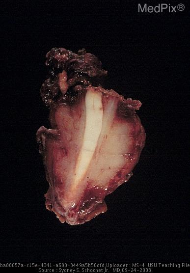 Gross resection specimen showing the neoplasm surrounding the optic nerve.