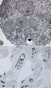Two views of the glycosomes in trypanosomatids as seen in a conventional thin section and in cells incubated in the presence of ethanolic phosphotungstic acid, which reveals basic proteins.