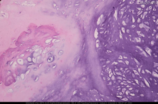 Histologically, the tumor was composed predominantly of hyaline cartilage with a smaller component of mature bone.
