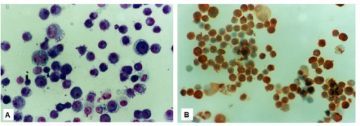 The cytologic examination of the ascitic fluid showed malignant cells with high mitotic index (Giemsa × 400) (A). Immunocytochemistry against the melanocyte specific antibody S-100 confirmed the presence of malignant melanocytes (Hematoxylin and DAB × 400).