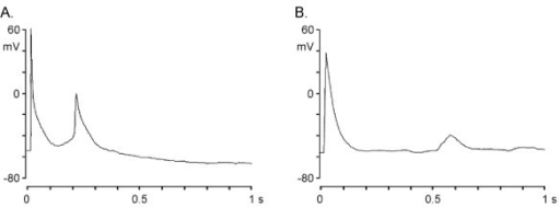 Triggered rhythms in hamster LA-PV cardiomyocyte. Panel A and B show typical examples of early and delayed afterdepolarization (EAD and DAD, respectively) recorded in a myopathic myocyte stimulated at a rate of 1 Hz in normal Tyrode's solution.
