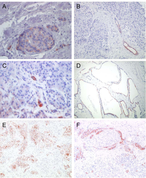 Results of anti-CCL20 immunohistochemistry in normal and diseased pancreatic tissues. Representative example of CCL20 expression in [A,B] pancreatic islet cells and epithelial cells of pancreatic ducts, [C] necrotic parenchyma and epithelial cells of pancreatic ducts in chronic pancreatitis tissues [D] epithelial cells of the characteristic net-like structures of pancreatic cystadenoma [E,F] cytoplasms of ductal epithelial cancer cells and in infiltrates of perineural sheaths. Anti-CCL20 goat anti-human, 75 μg/ml (MIP-3α; R&D Systems; Minneapolis, MN, USA. Avidin Biotin Complex (ABC) Method. (original magnification: × 200 and 400, respectively).