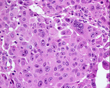 Histology - nodal metastasis (Hematoxylin and eosin staining).