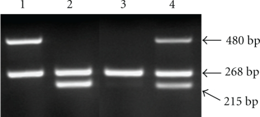 Genotyping of GSTM1 and GSTT1 by multiplex PCR. Lane 1:  GSTM1 genotype (absence of 215 bp fragment). Lane 2:  GSTT1 genotype (absence of 480 bp fragment). Lane 3:  GSTM1 and GSTT1 genotypes (absence of 215 and 480 bp fragments). Lane 4: present GSTM1 and GSTT1 genotypes. β-globin as a positive control is detected as 268 bp fragment.