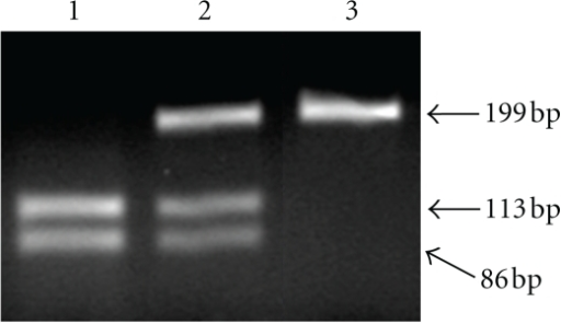 Genotyping of p53 codon 72 by PCR-RFLP. Lane 1: Arg/Arg homozygote. Lane 2: Arg/Pro heterozygote. Lane 3: Pro/Pro homozygote. The fragment of 199 bp is the nondigested PCR product from the Pro allele. Fragments of 113 and 86 bp result from BstUI digestion of the Arg allele.