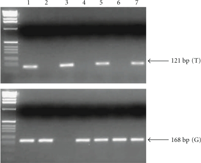 Representative genotyping of MDM2-SNP309 by two independent PCR assays for each allele. Lanes 1, 5, and 7: TG heterozygote. Lanes 2, 4, and 6: GG homozygote. Lane 3: TT homozygote. The wild-type (T) and the mutant (G) allele yields 121-bp and 168-bp fragments, respectively.