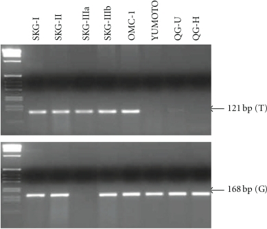Genotyping of MDM2-SNP309 in 8 cervical squamous carcinoma cell lines by two independent PCR assays for each allele. The TT genotype was detected only for SKG-IIIa, whereas the TG genotype for SKG-I, SKG-II, SKG-IIIb, and OMC-1, and the GG genotype for YUMOTO, QG-U, and QG-H cell lines, respectively.