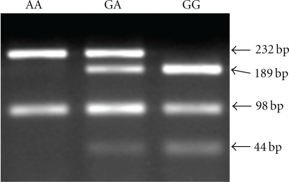 Genotyping of Fas gene promoter -670 in DNA samples from peripheral blood lymphocytes by PCR-RFLP. The genotypes AA (232 bp), GA (189, 233 bp), and GG (189 bp) are shown.