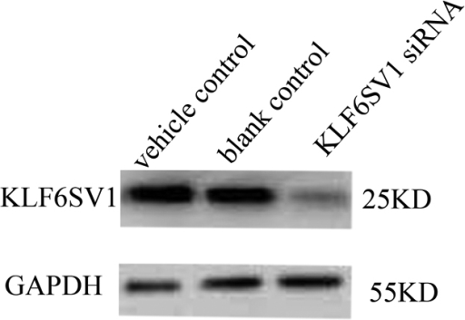 Downregulation of KLF6SV1 in HLEC transfected with pKLF6SV1 siRNA. There is KLF6SV1 expression in the HLEC transfected with vehicle control (lane 1) or blank control (lane 2). Little expression of KLF6SV1 was detected in HLEC transfected with pKLFSV1 siRNA which indicates KLF6SV1siRNA can effectively decrease the expression of KLF6SV1 (lane 3).
