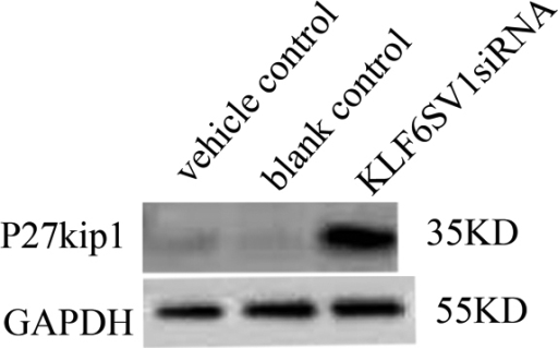 Upregulation of p27kip1 in HLEC transfected with pKLF6SV1 siRNA. Expression of p27kip1 increased in HLEC transfected with pKLFSV1 siRNA (lane 3) compared with vehicle control (lane 1) and blank control (lane 2).