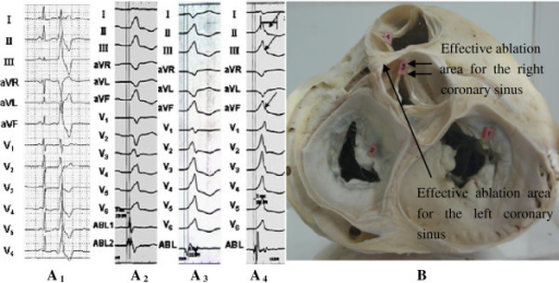 Schematic diagram of the surface 12-lead ECG characteri ...