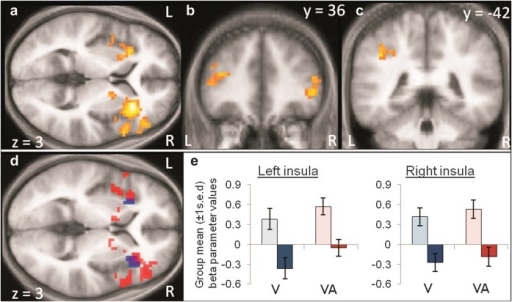 Brain activity enhanced by isochronous stimulus timing. (a) Isochrony versus random timing enhanced activity in bilateral IFG, insula, putamen, and globus pallidus; (b) in left DLPFC; and (c) in left IPS, when collapsed across visual (V) and audiovisual (VA) conditions. (d) Conjunction analysis confirmed overlap (purple shading) between isochrony enhancement effects on vision-only (V; blue shading) and audiovisual (VA; red shading) conditions in bilateral insula. (e) Cluster mean beta parameters (±1 s.e.d. for isochrony effect) plotted for each condition (light bars = isochronous; dark bars = random). Thresholds: voxel punc < 0.001 and cluster pFWE < 0.05 displayed on mean anatomical brain images.