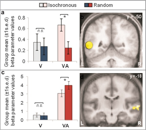 Auditory tone modulates impact of visual stimulus timing on pSTS ROI. (a) Multisensory ROI in left pSTS showed greater isochrony enhancement when visual stimuli were accompanied by a synchronous auditory tone (VA), but not when presented alone (V). (b) The 8-mm sphere ROI was centered at x = −54, y = −50, z = 8, a location previously identified to be modulated by temporal properties of long audiovisual stimulus steams (Noesselt et al. 2007; see also Marchant et al. 2011). By contrast, (c and d) whole brain analysis revealed a region in the right superior temporal gyrus (STG) that showed the opposite interaction pattern, with greater enhancement for random timing during the audiovisual (VA) than the vision-only (V) condition. (a and c) Group mean (±1 s.e.d. for isochrony effect) beta parameter values plotted for each condition (light bar = isochronous; dark bars = random). (b) Shows ROI; (d) shows significant cluster from whole-brain analysis. Both are displayed on the mean anatomical image. * = Significant post hoc paired t-test (P < 0.05).