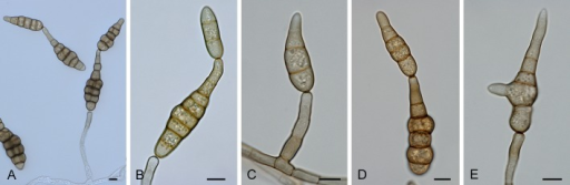 Alternaria sect. Japonicae: conidia and conidiophores. A-B. A. japonica. C-E. A. nepalensis. Scale bars = 10 μm.