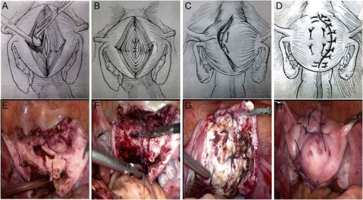 Schematic (A, B, C, and D) and surgical view (E, F, G, and H) of laparoscopic adenomyomectomy using the double-flap method. (A and E) after complete removal of adenomyotic lesions using the resection technique of Osada et al. (B and F) closure and reconstruction of the uterine cavity using 3–0 absorbable suture. (C and G) the first flap in one side wall of the uterus is brought into the second flap in another side of the uterine wall such that the other side wall of the uterus is covered. (D and H) the second flap in another side of the uterine wall is brought to cover the first flap in one side wall of the uterus (before overlapping occurs, the serosal surface of the underlying flaps is stripped to ensure that only myometrial tissue flaps are overlapped).