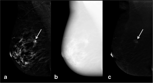 A typical contrast-enhanced spectral mammography (CESM) examination (only right mediolateral oblique view shown), consisting of a low-energy (a), high-energy (b) and recombined (c) image. A suspicious lesion is seen on the low-energy image, showing enhancement on the recombined image (white arrows). Histopathology showed invasive ductal carcinoma. The high-energy image is not for diagnostic purposes but is used for construction of the recombined image
