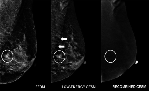 A 54-year-old female recalled from the breast cancer screening program (full-field digital mammography (FFDM) image) for a round mass in the left breast (*), also visible on the low-energy contrast-enhanced spectral mammography (CESM) image. On the recombined image, an 'eclipse sign' is visible, suggesting a cyst, and confirmed by targeted ultrasound. In this case, the sharpness of the pectoral muscle was scored '5' on the FFDM image. On the low-energy CESM image, the delineation of the pectoral muscle was lost (white arrows), resulting in a score of '3' from both radiologists