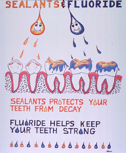 <p>White poster with gold and blue lettering.  Title at top of poster.  Visual image is an illustration showing two droplets suspended from title words, raining down sealant and fluoride on the teeth below.  Caption below illustration.  The &quot;o&quot;s in the caption are represented by droplets and a row of smiling droplets adorns the bottom of the poster.</p>