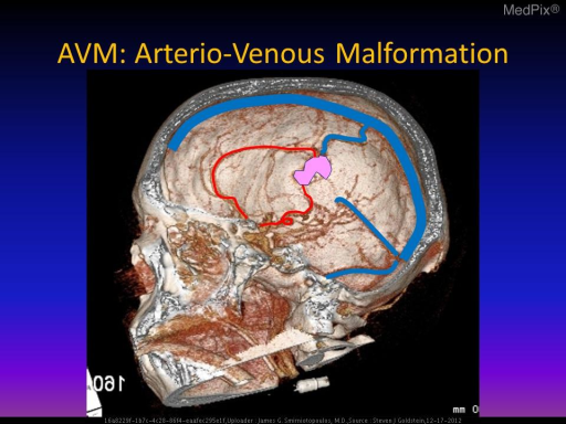 This 3D reconstruction shows at least two dilated arteries (red); the nidus of the AVM (pink); and, a large draining vein (blue) connecting to the superior sagittal sinus.
