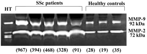Gelatinase activity of matrix metalloproteinase (MMP)-2 (72 kDa) and MMP-9 (92 kDa) in sera of patients with systemic sclerosis (SSc) and healthy controls. Sera (0.5 μl) from 20 patients with SSc and 10 healthy controls were analyzed for their MMP-2 and MMP-9 activities by gel zymography. As a positive control, supernatants from cultured HT1080 cell lines (HT) stimulated with 10 μg/ml of concanavalin A were used. Numbers in parentheses are MMP-9 concentrations (ng/ml) determined by ELISA. The figure shows representative results for serum samples from the two groups.