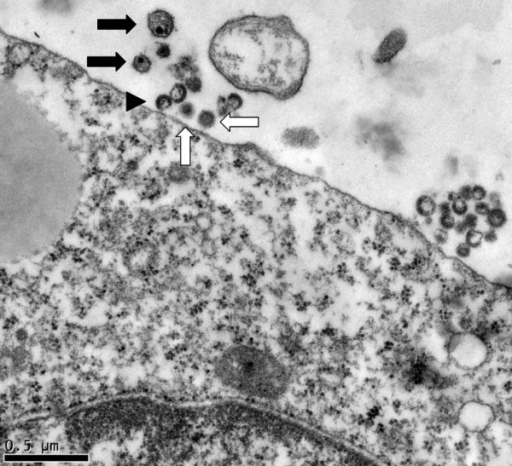 Electron micrograph of HCV and HIV-1 extracellular particles in the vicinity of a K7 cell. Representative HIV-1 particles are indicated with black arrows, HCV with white arrows, and immature HIV-1 particles by an arrowhead. The HIV-1 particles are a little larger than HCV.