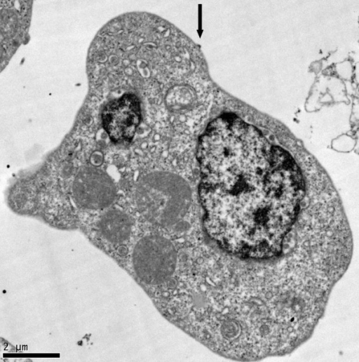 TEM of triply-infected K7 cell. HIV-1 particle budding from the plasma membrane (arrow).